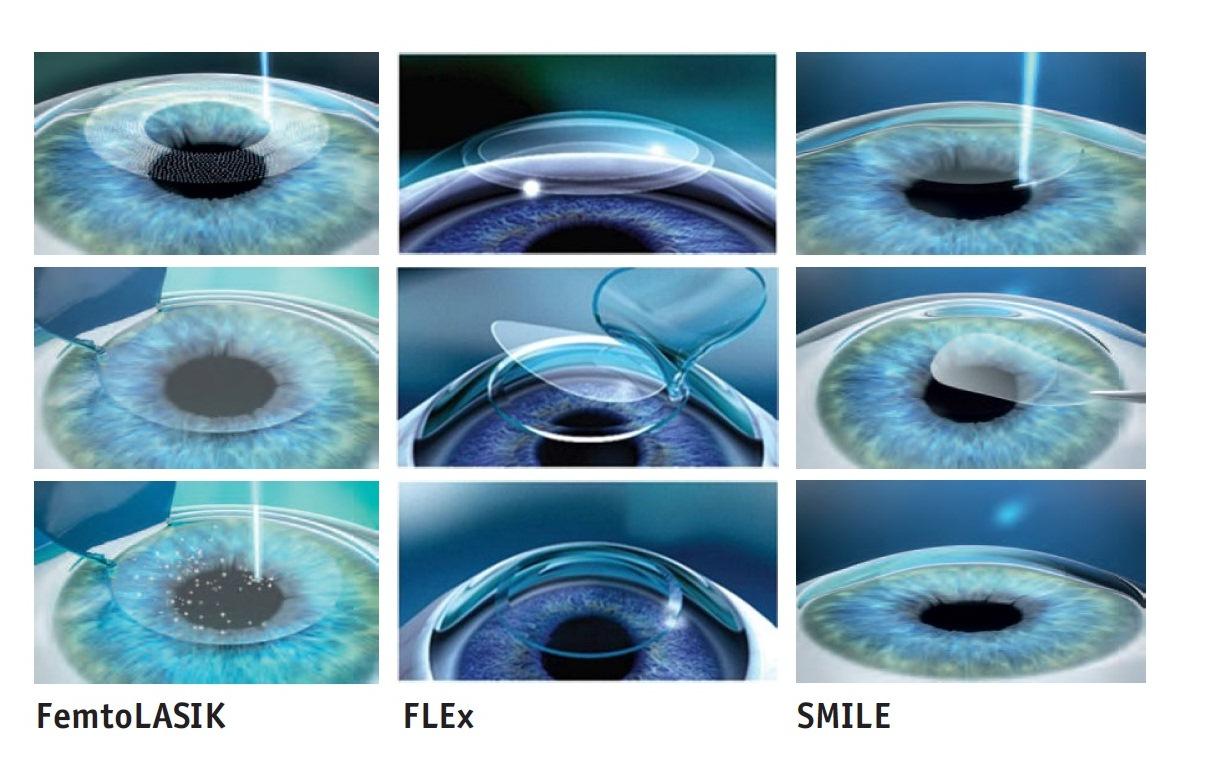 Современные технологии лазерной коррекции нарушений зрения